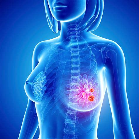 Breast cancer checking jpg 960x960
