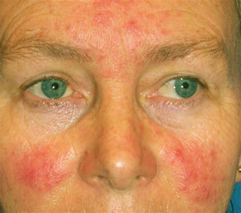 Acne diagnosis and treatment mayo clinic jpg 693x613