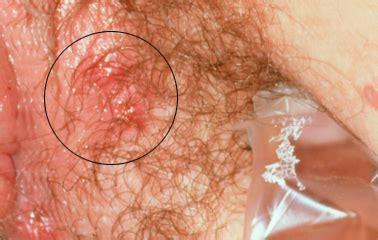sores around the vagina jpg 378x240